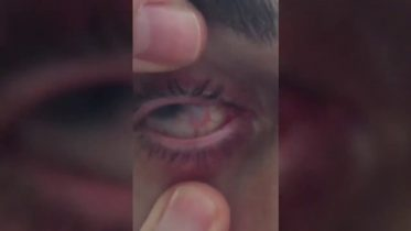 Graphic: Ontario man shows eye blinded by water-borne parasite 10