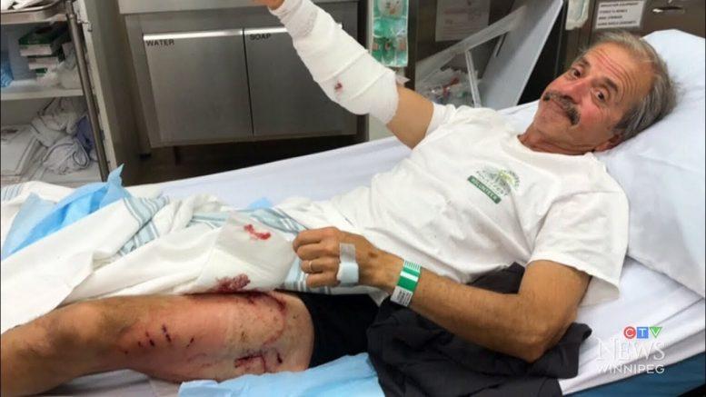 Winnipeg man recalls fighting and surviving a bear attack 1