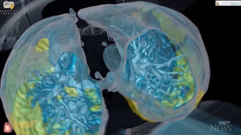 3D imaging shows how quickly COVID-19 can attack a healthy person's lungs 1