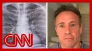 Chris Cuomo shares chest X-rays after coronavirus diagnosis 4