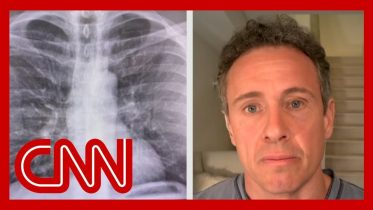 Chris Cuomo shares chest X-rays after coronavirus diagnosis 6