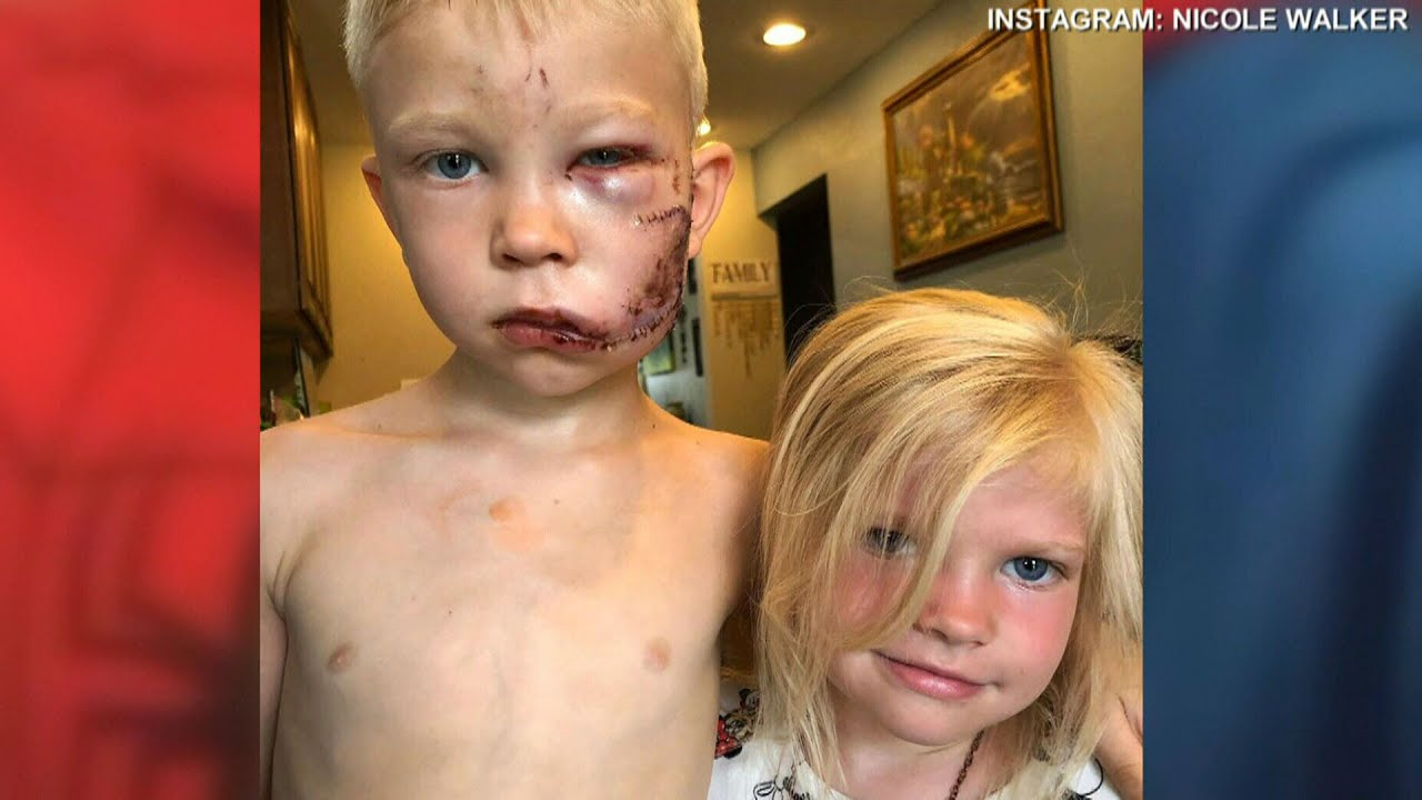 Six-year-old boy called hero for saving sister from dog 9