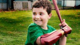 Rare disease survivor tests his new bionic arm 4