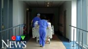 Study examines link between race and COVID-19 complications 3