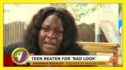 Teen Beaten for 'Bad Look' - November 12 2020 4