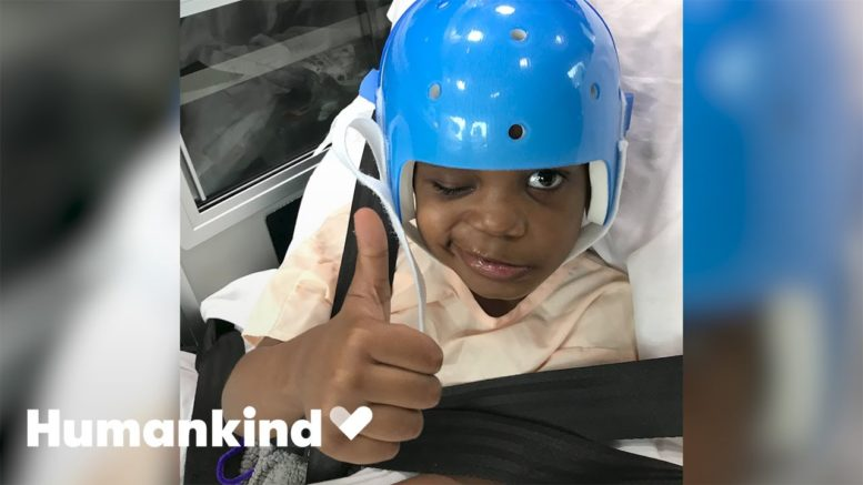 Five-year-old defies odds after brain surgery   Humankind 1