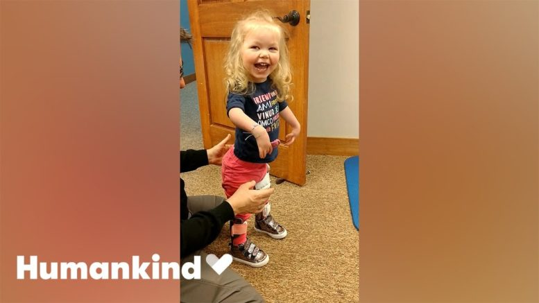 Toddler takes first steps after multiple surgeries | Humankind 1