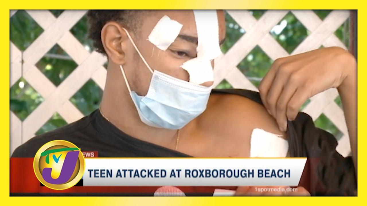 Teen Attacked at Roxborough Beach - December 10 2020 1