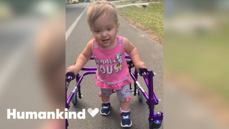 Little girl overcomes all odds to walk | Humankind 1