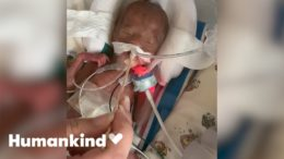 One of the world's tiniest babies beats the odds | Humankind 4
