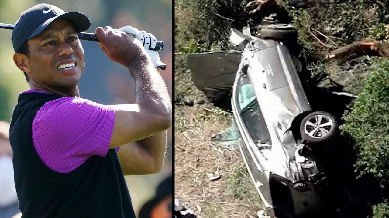 Golfer Tiger Woods has been hospitalized after a single-car collision in California 4