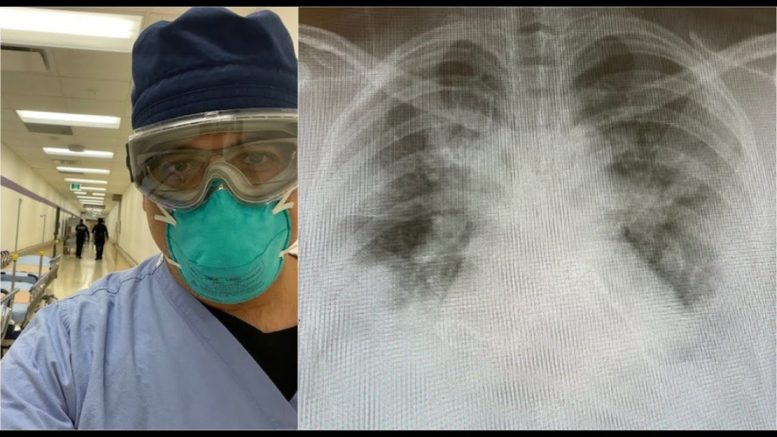 Toronto doctor shares images of lungs to show how COVID-19 is 'brutalizing' young people 1