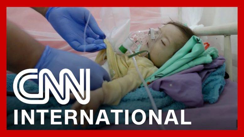 How children are bearing the brunt of famine in Yemen 1