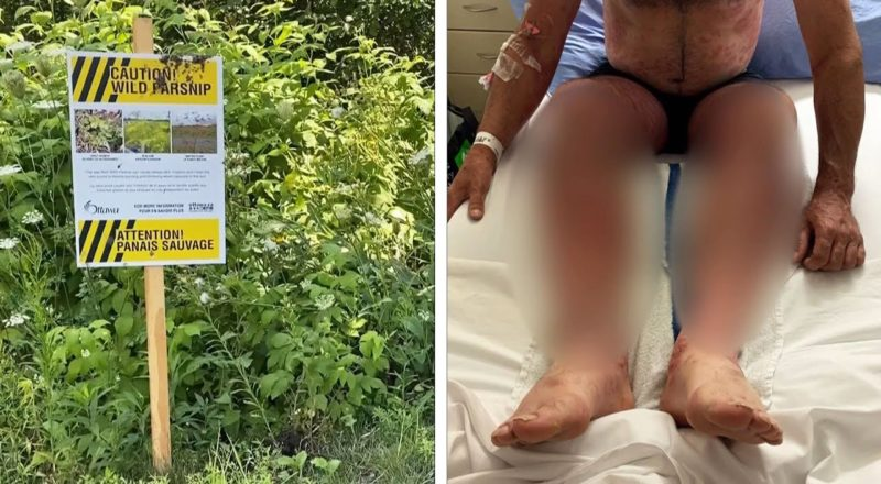 """""""You don't want this"""": Wild parsnip lands Ont. man in hospital with severe burns 1"""