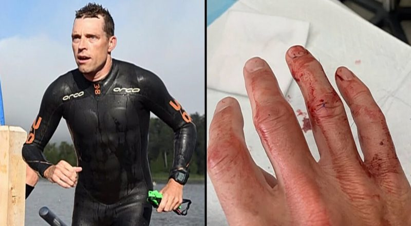 Ironman athlete needs 13 stitches after encounter with muskie fish 1